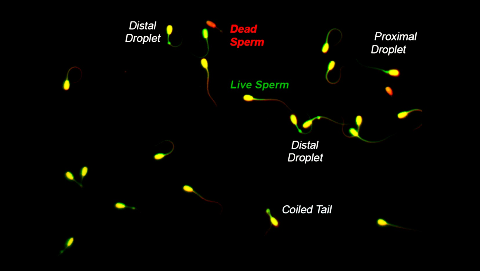 Flourescence Spermatozoa Morphology results